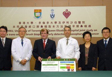 HKU partners with the University of Toronto and Queen Elizabeth Hospital to develop new test for detecting early nasopharyngeal cancer (NPC)