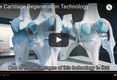 New Cartilage Regeneration Technology